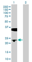 H00000645-D01P - Flavin reductase