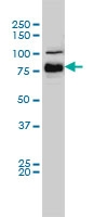 H00000673-M01 - B-Raf proto-oncogene