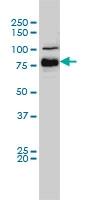 H00000673-M01A - B-Raf proto-oncogene
