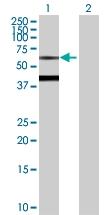 H00000686-D01P - Biotinidase