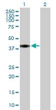 H00000725-B01P - C4b-binding protein beta