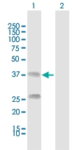 H00000725-D01 - C4b-binding protein beta