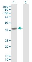 H00000725-D01P - C4b-binding protein beta