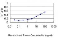 H00000845-M01 - Calsequestrin-2
