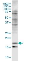 H00001073-M03 - Cofilin-2