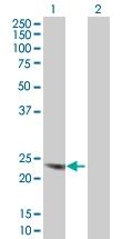 H00001082-B01 - Chorionic Gonadotropin (hCG)