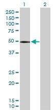 H00001118-D01P - Chitinase 1