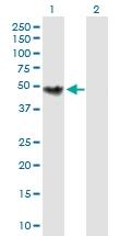 H00001120-B01P - Choline Kinase beta