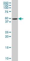 H00001138-A01 - Neuronal acetylcholine receptor subunit alpha-5
