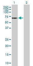 H00001144-D01P - Acetylcholine receptor delta subunit