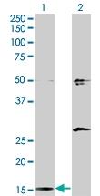 H00001175-M01 - AP2 complex subunit sigma-1 / AP2S1