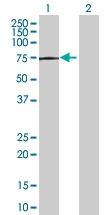 H00001200-B01 - Tripeptidyl-peptidase 1 (TPP1)