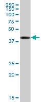 H00001200-B01P - Tripeptidyl-peptidase 1 (TPP1)