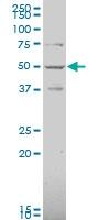 H00001268-A01 - Cannabinoid receptor 1
