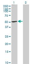 H00001268-B01P - Cannabinoid receptor 1