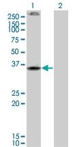 H00001269-M01 - Cannabinoid receptor 2