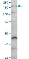 H00001289-M01 - Collagen type V