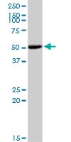 H00001299-D01P - Collagen type IX alpha 3 chain