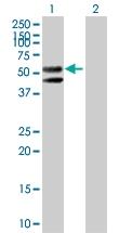 H00001368-B01P - Carboxypeptidase M