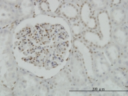 H00001385-M02 - CREB1