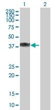 H00001404-B01P - Proteoglycan link protein / HAPLN1