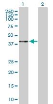 H00001404-D01P - Proteoglycan link protein / HAPLN1