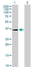 H00001428-D01P - Mu-crystallin homolog