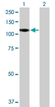H00001441-B01P - CD114 / CSF3R