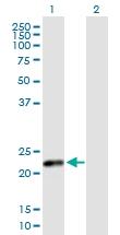 H00001443-B02P - Placental Lactogen