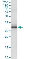 H00001446-D01 - Alpha-S1-casein