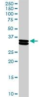 H00001446-D01P - Alpha-S1-casein