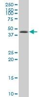 H00001453-A01 - Casein kinase I delta