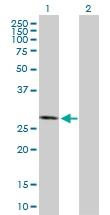 H00001460-B01P - Casein kinase II beta