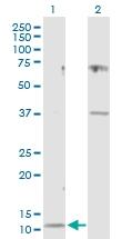 H00001471-D01P - Cystatin-C