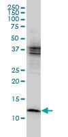 H00001476-M01 - Cystatin-B