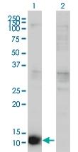 H00001476-M02 - Cystatin-B