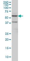 H00001497-M09 - Cystinosin