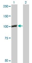 H00001499-M02 - Catenin beta-1