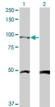 H00001499-M03 - Catenin beta-1