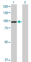H00001499-M05 - Catenin beta-1