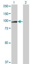 H00001499-M06 - Catenin beta-1