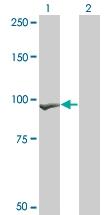 H00001499-M07 - Catenin beta-1