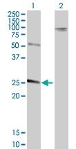 H00001504-B01P - Chymotrypsin