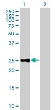 H00001504-B02P - Chymotrypsin