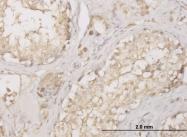 H00001509-M01 - Cathepsin D