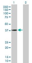 H00001514-D01P - Cathepsin L1