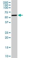 H00001588-D01P - Aromatase
