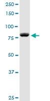 H00001606-D01P - DAG kinase alpha