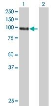 H00001608-B01 - DAG kinase gamma