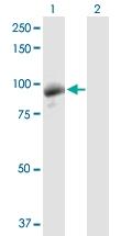 H00001608-D01P - DAG kinase gamma